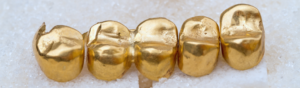 Or en Cash vous explique comment vendre de l'or dentaire